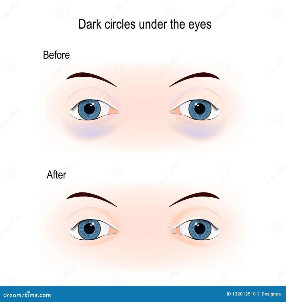 medium resolution of bags under eyes diagram simple wiring diagrams inner ear diagram dark circles under the eyes stock