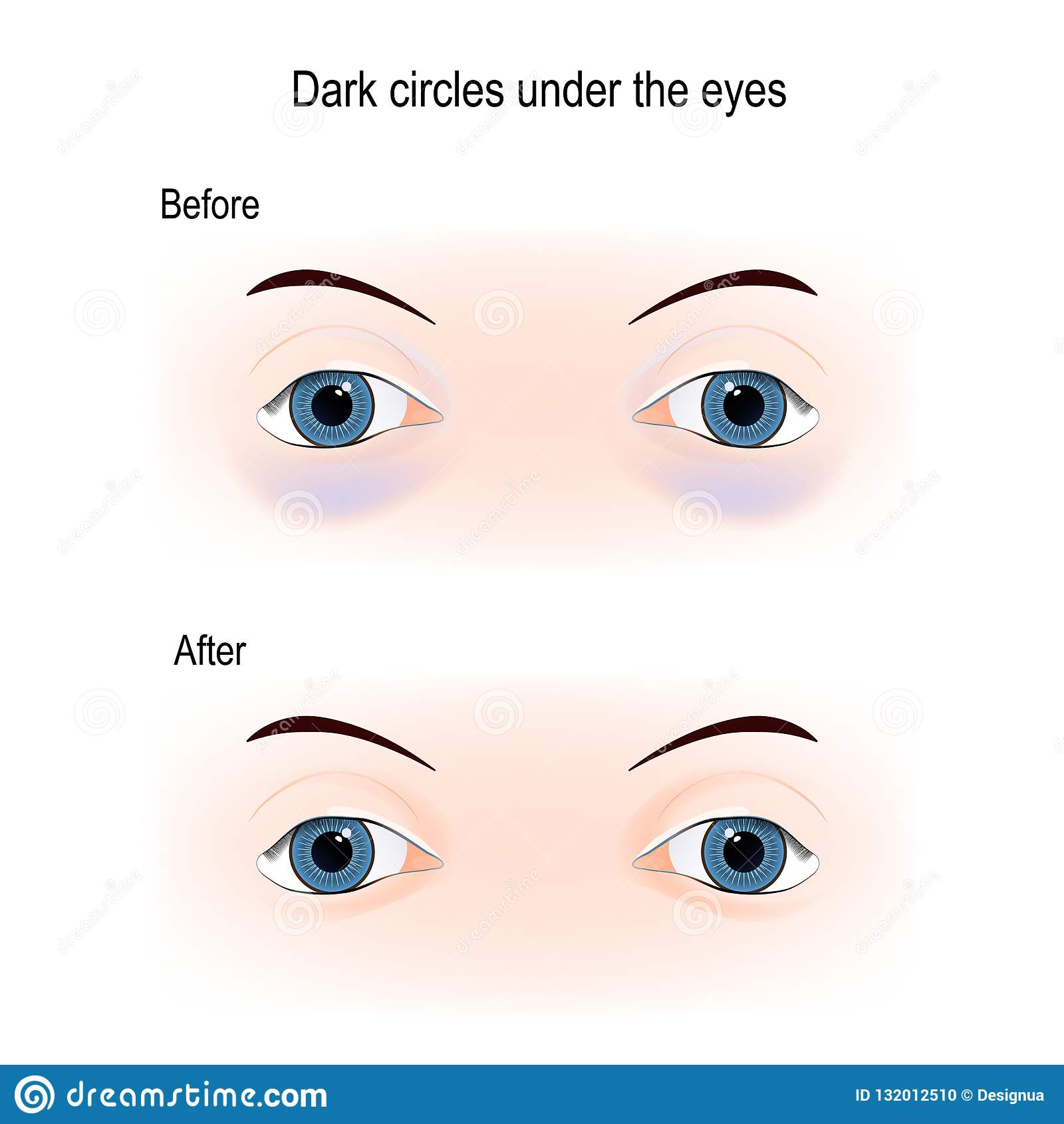 hight resolution of bags under eyes diagram simple wiring diagrams inner ear diagram dark circles under the eyes stock