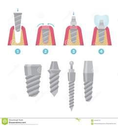 prosthodontics stock illustrations 21 prosthodontics stock illustrations vectors clipart dreamstime [ 1300 x 1390 Pixel ]
