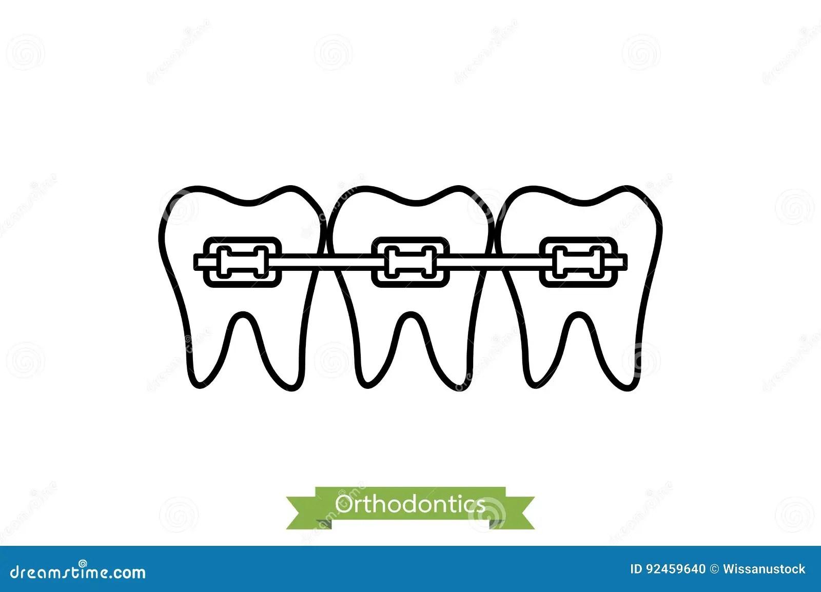 Dental Orthodontics Treatment