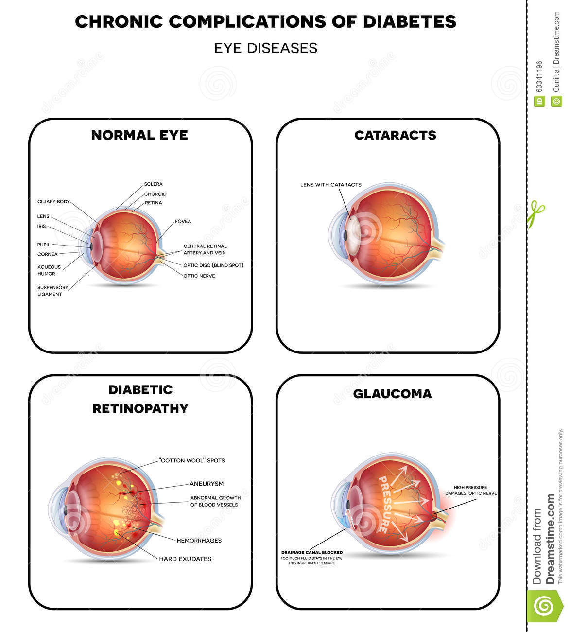 diagram for eye surgery cartoon land rover discovery 3 wiring retinopathy cartoons illustrations and vector stock images