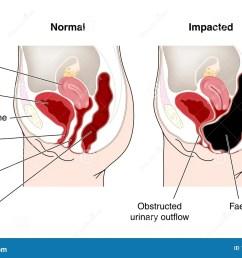 bowel diagram [ 1300 x 964 Pixel ]