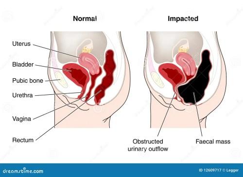 small resolution of bowel diagram