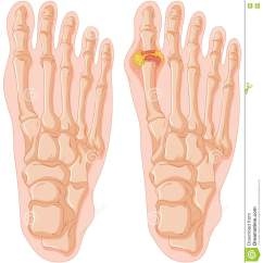 Top Of Foot Pain Diagram 4017 And 555 Circuit Gout Cartoons Illustrations Vector Stock Images 159