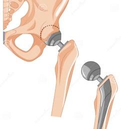 diagram of hip bone treatment [ 911 x 1300 Pixel ]