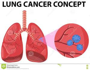 Diagram Of Lung Cancer Concept Stock Vector  Illustration