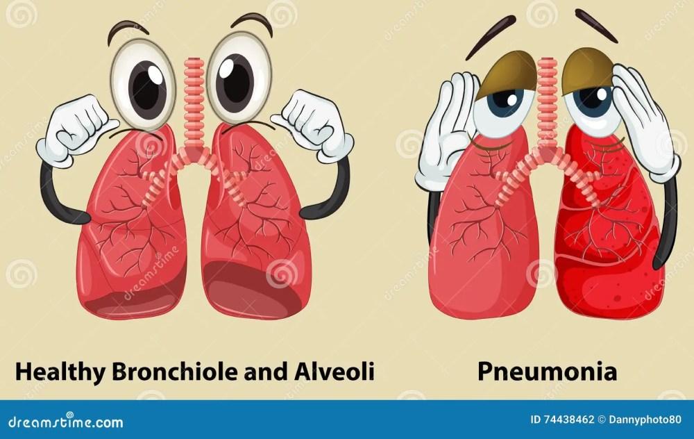 medium resolution of diagram showing healthy and pneumonia lungs stock vector pneumonia lung diagram