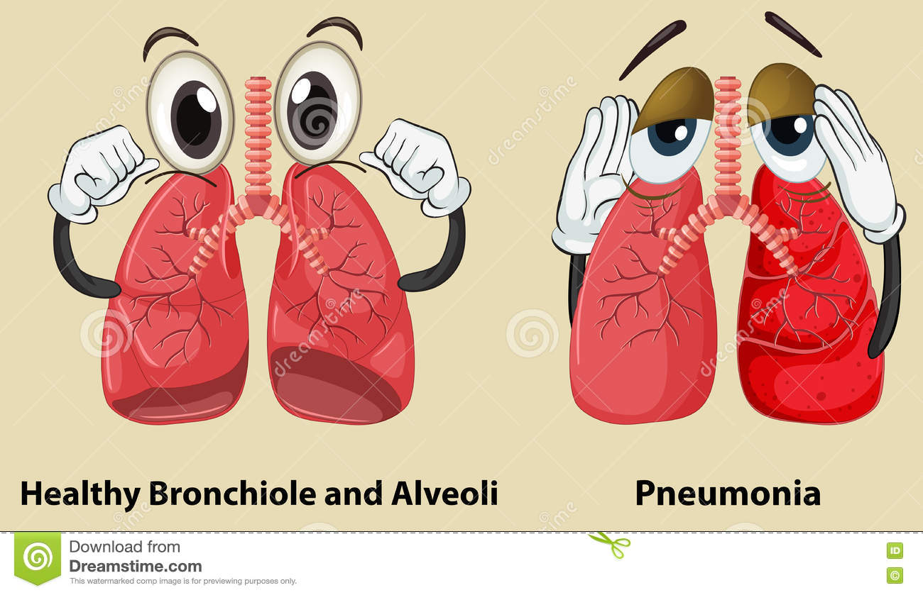 hight resolution of diagram showing healthy and pneumonia lungs stock vector pneumonia lung diagram