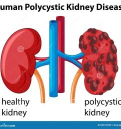 diagram showing human polycystic kidney disease [ 1300 x 1208 Pixel ]