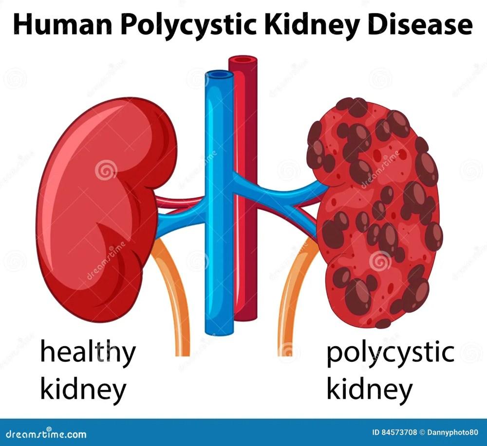 medium resolution of diagram showing human polycystic kidney disease