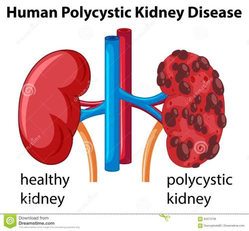 small resolution of diagram showing human polycystic kidney disease