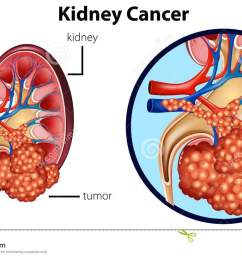 diagram showing kidney cancer [ 1300 x 817 Pixel ]