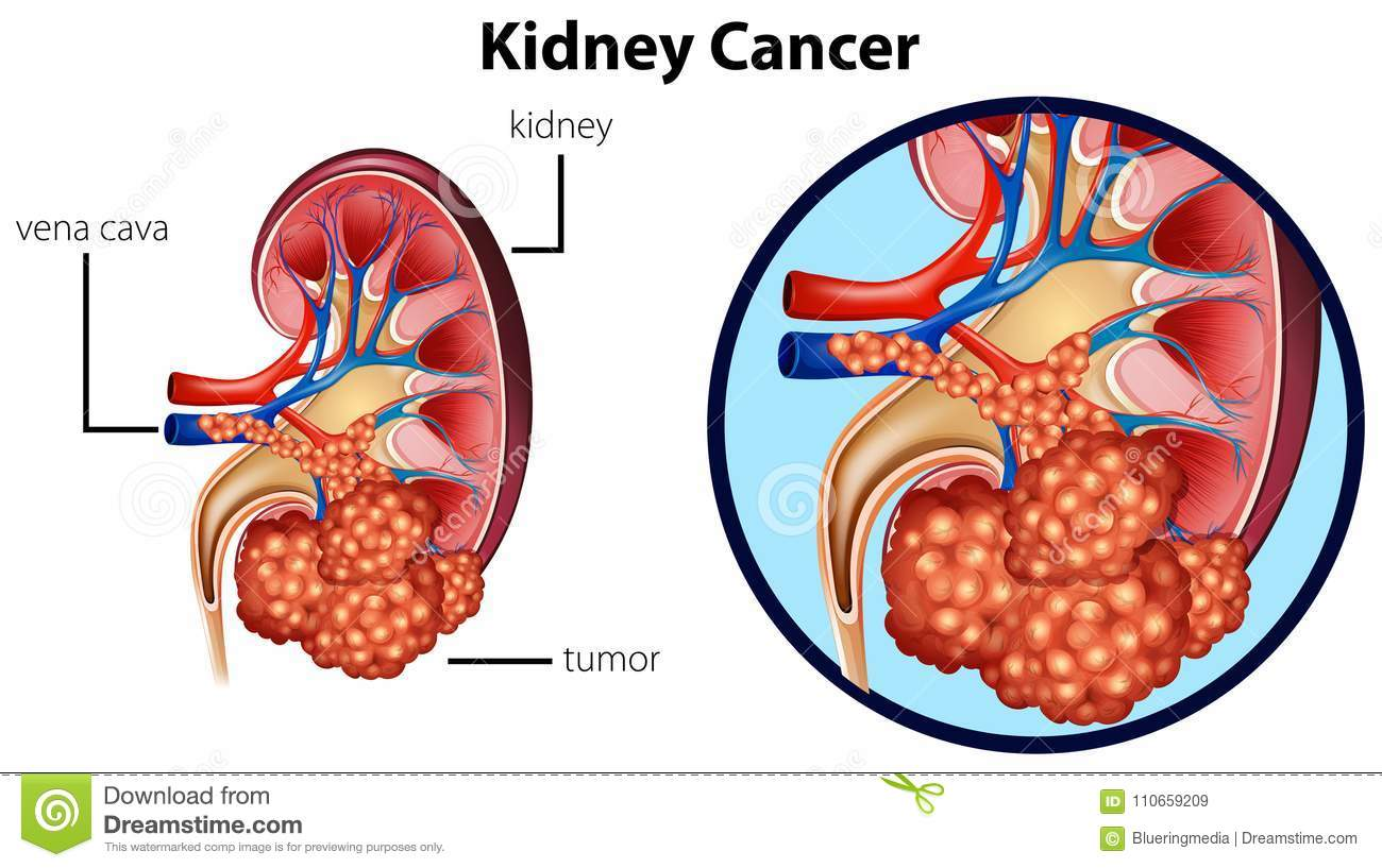 hight resolution of diagram showing kidney cancer