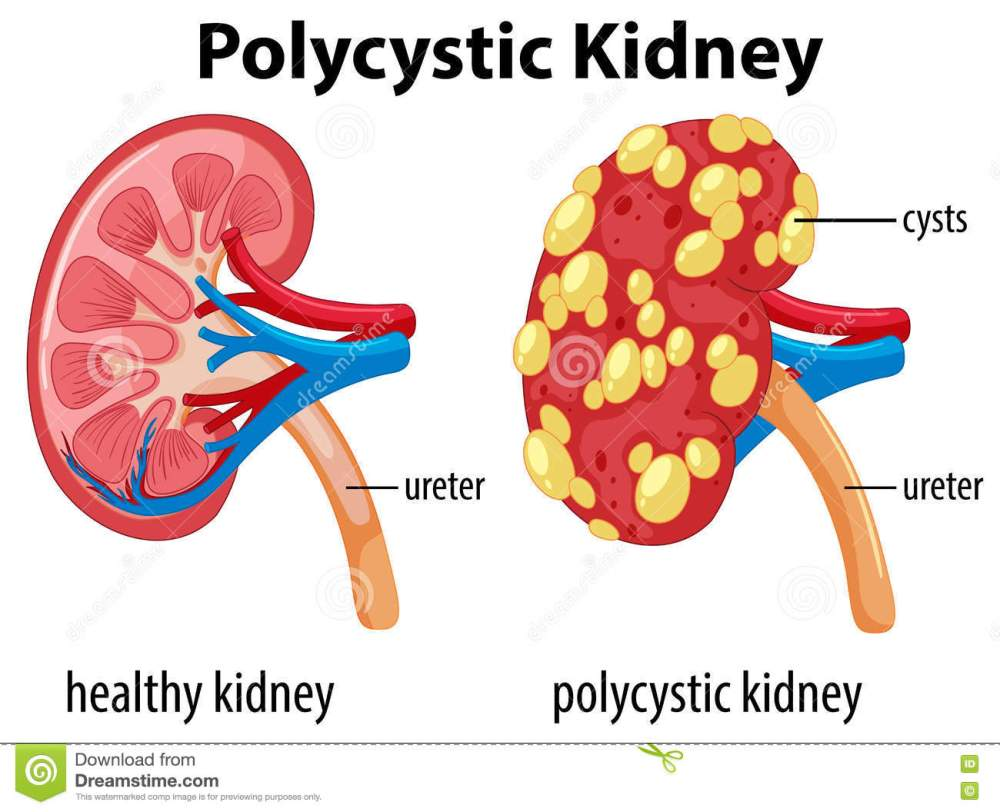 medium resolution of diagram showing polycystic kidney