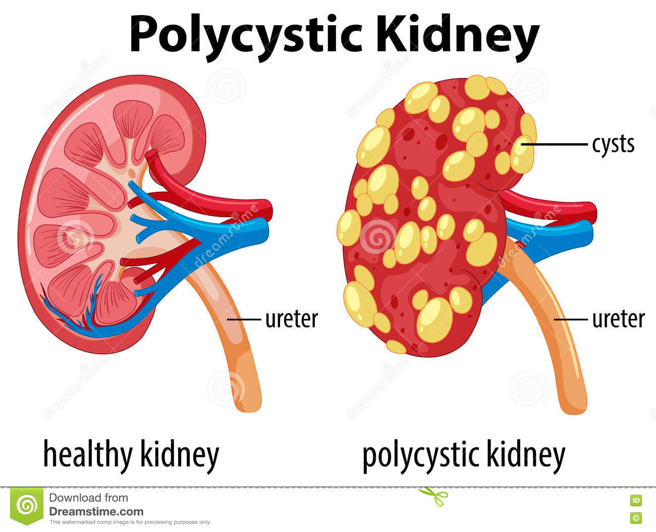 hight resolution of diagram showing polycystic kidney