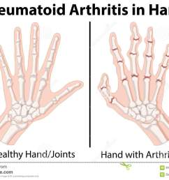 diagram showing rheumatoid arthritis in hand [ 1300 x 918 Pixel ]