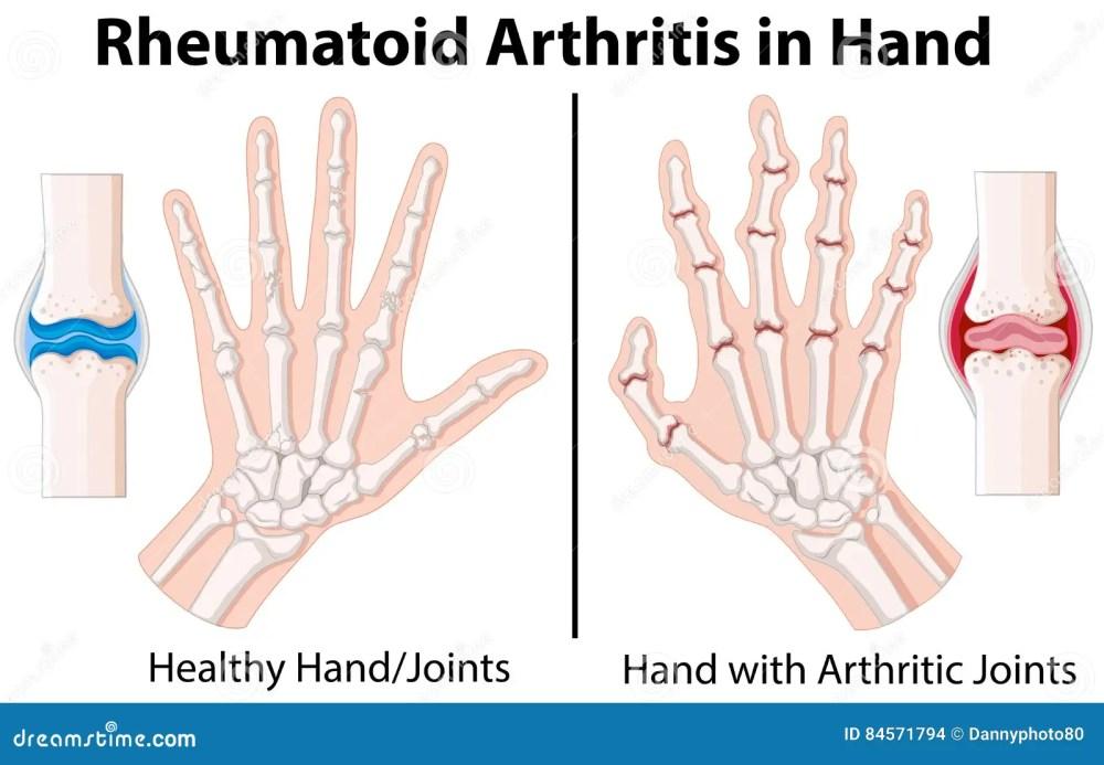 medium resolution of diagram showing rheumatoid arthritis in hand