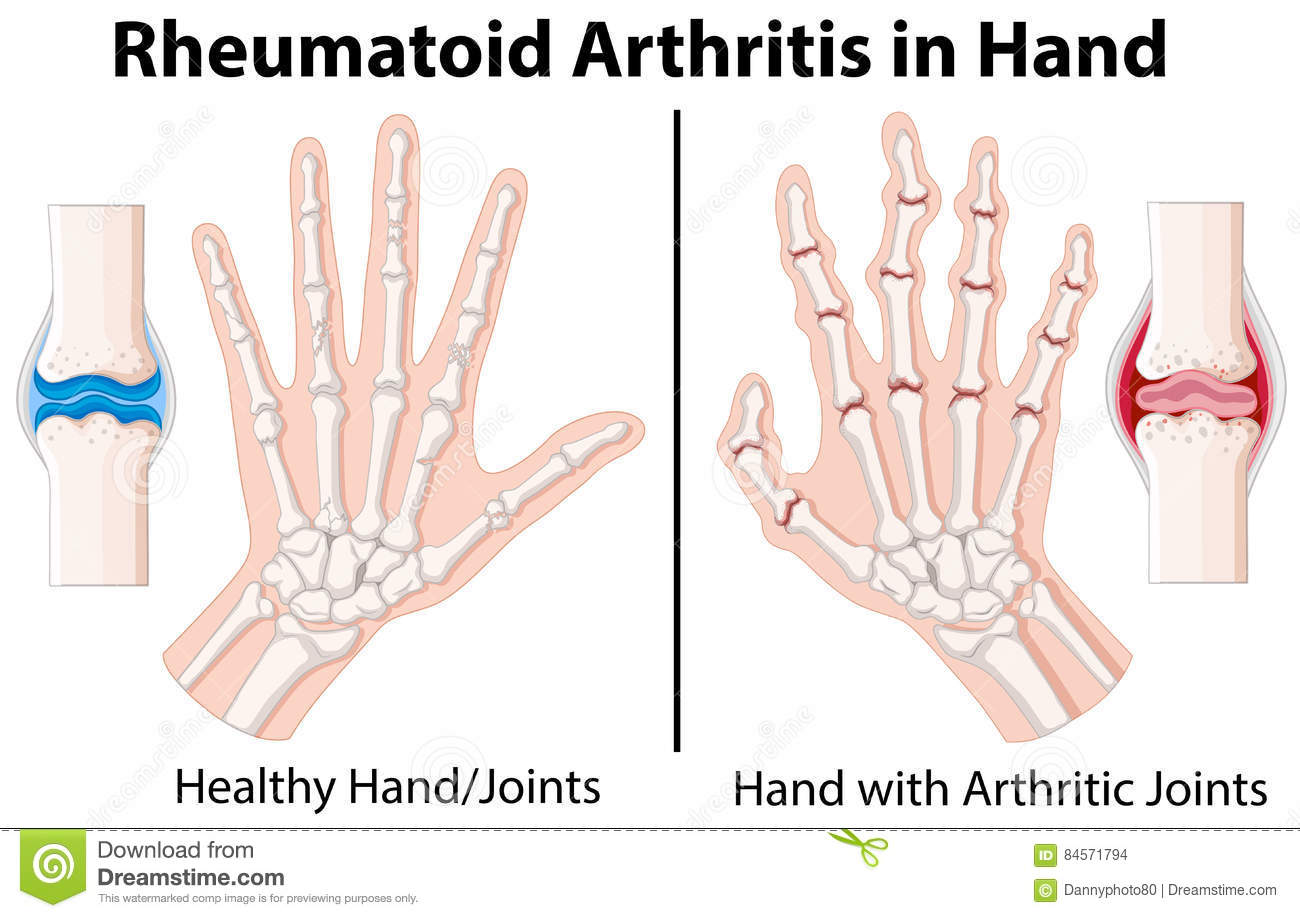 hight resolution of diagram showing rheumatoid arthritis in hand