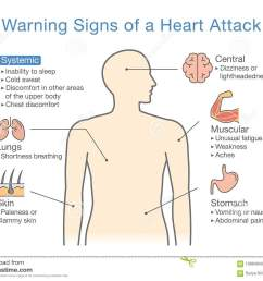 disease body diagram wiring diagram data val diagram about warning signs of a heart attack stock [ 1300 x 1032 Pixel ]