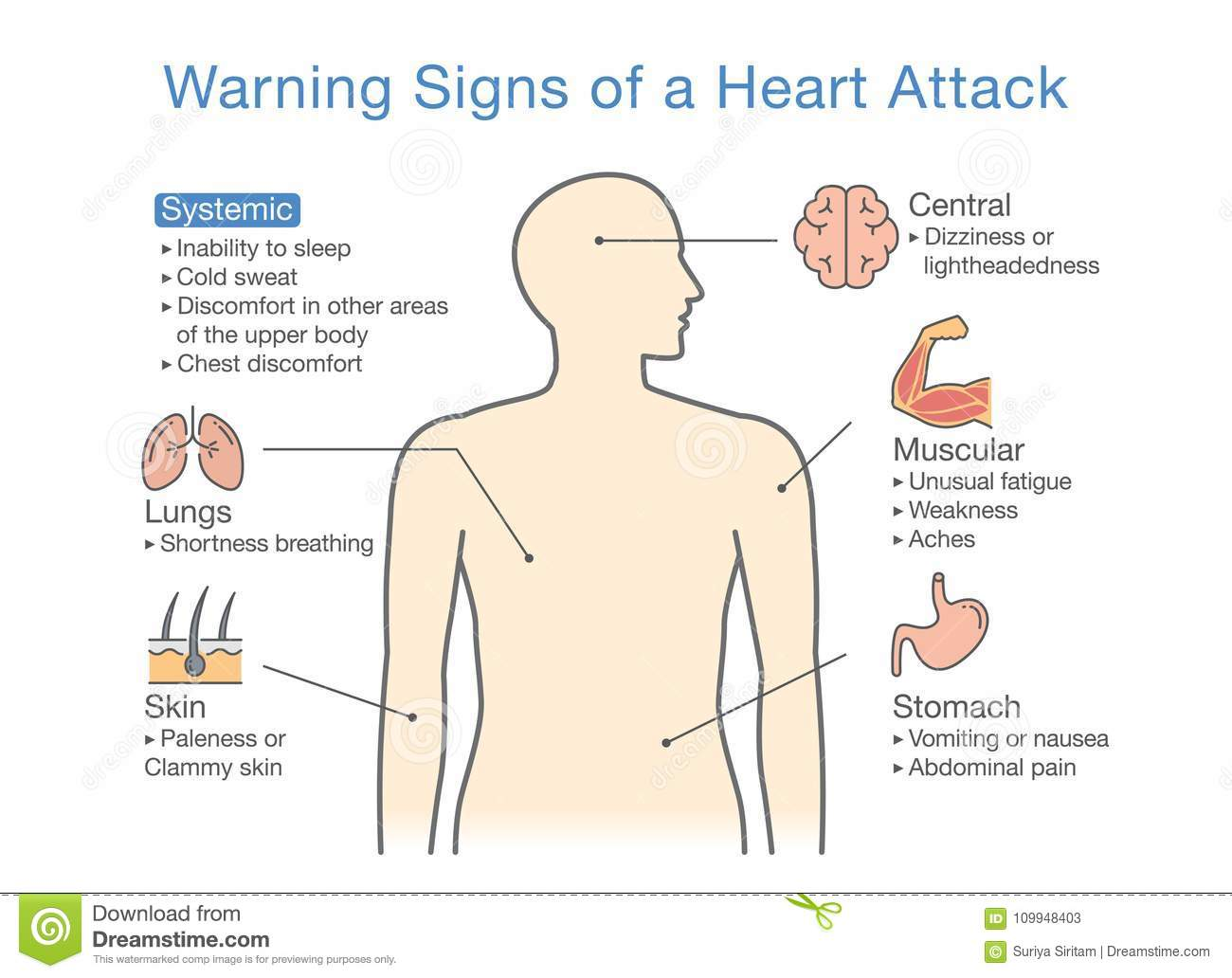 hight resolution of disease body diagram wiring diagram data val diagram about warning signs of a heart attack stock