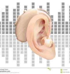 digital hearing aid behind the ear on background of sound wave diagram treatment and prosthetics of hearing loss in otolaryngology  [ 1300 x 1093 Pixel ]