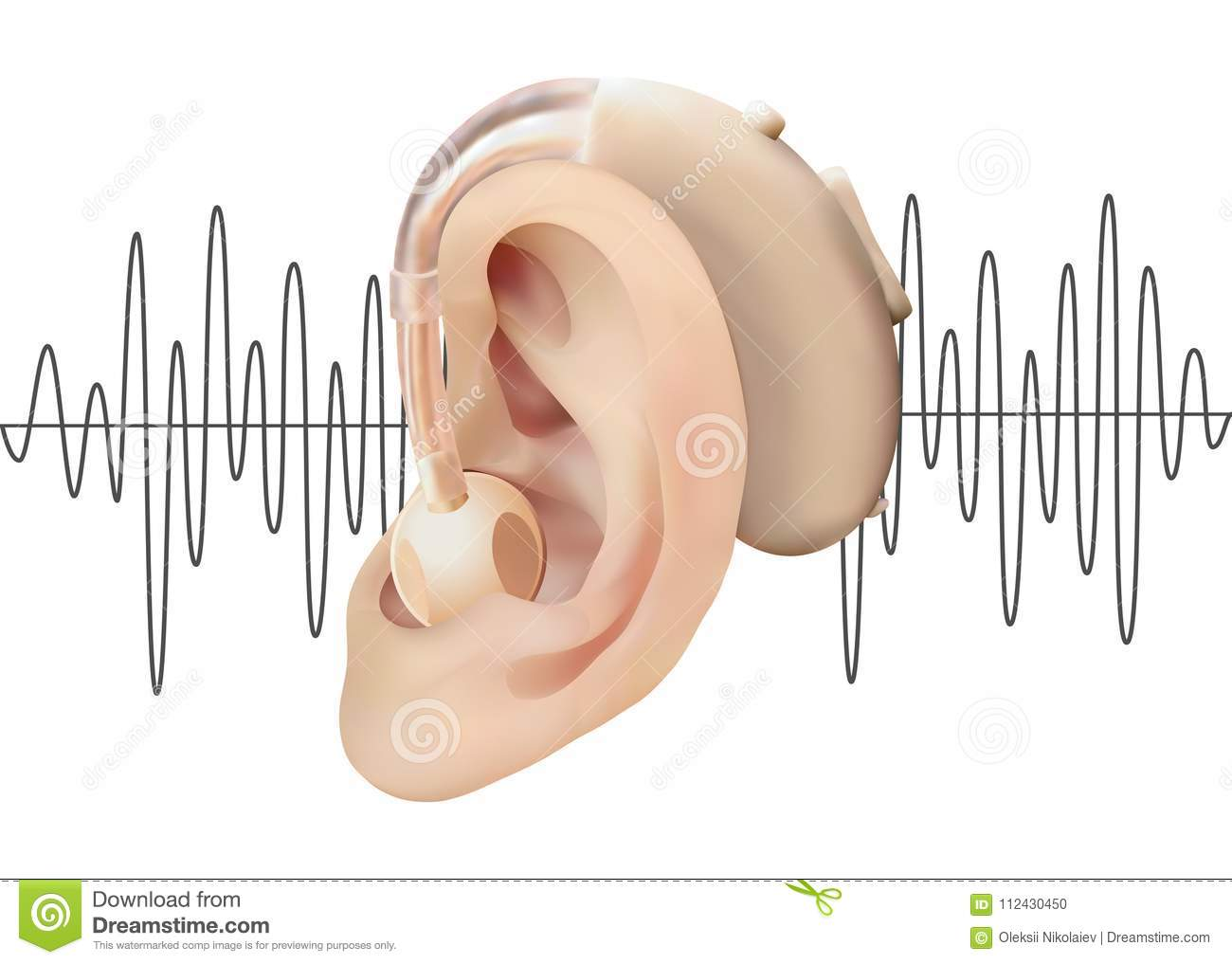 Digital Hearing Aid Behind The Ear On The Background Of Sound Wave Diagram Treatment And