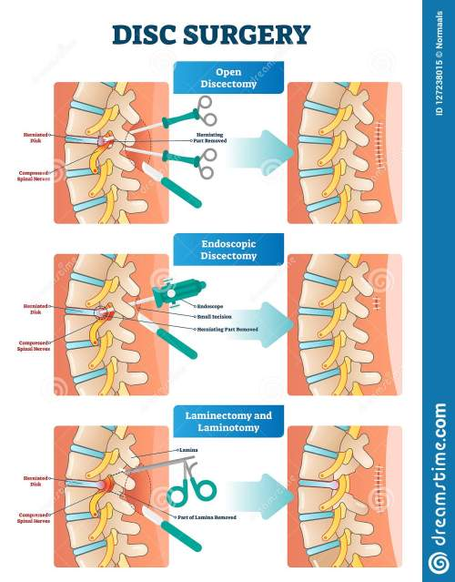 small resolution of disc surgery vector illustration diagram with back nerves and bones pain