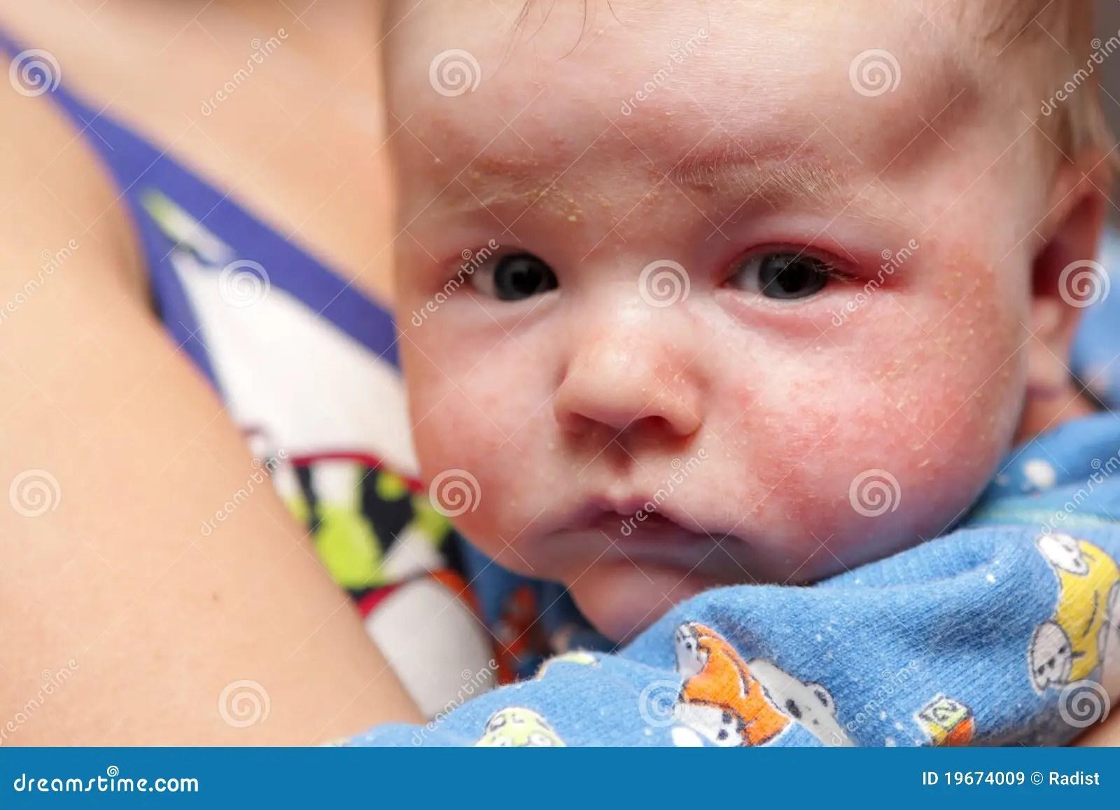 Eczema En La Cara De Recién Nacido Imagen de archivo ...