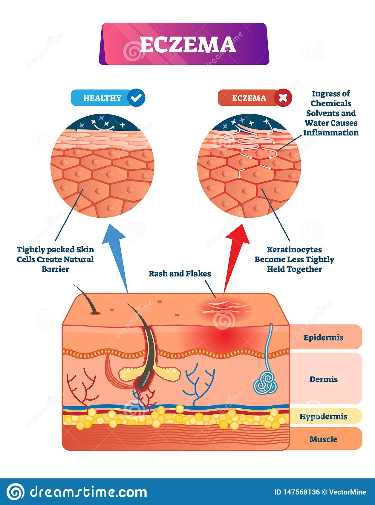 Eczema Vector Illustration Labeled Anatomical Structure