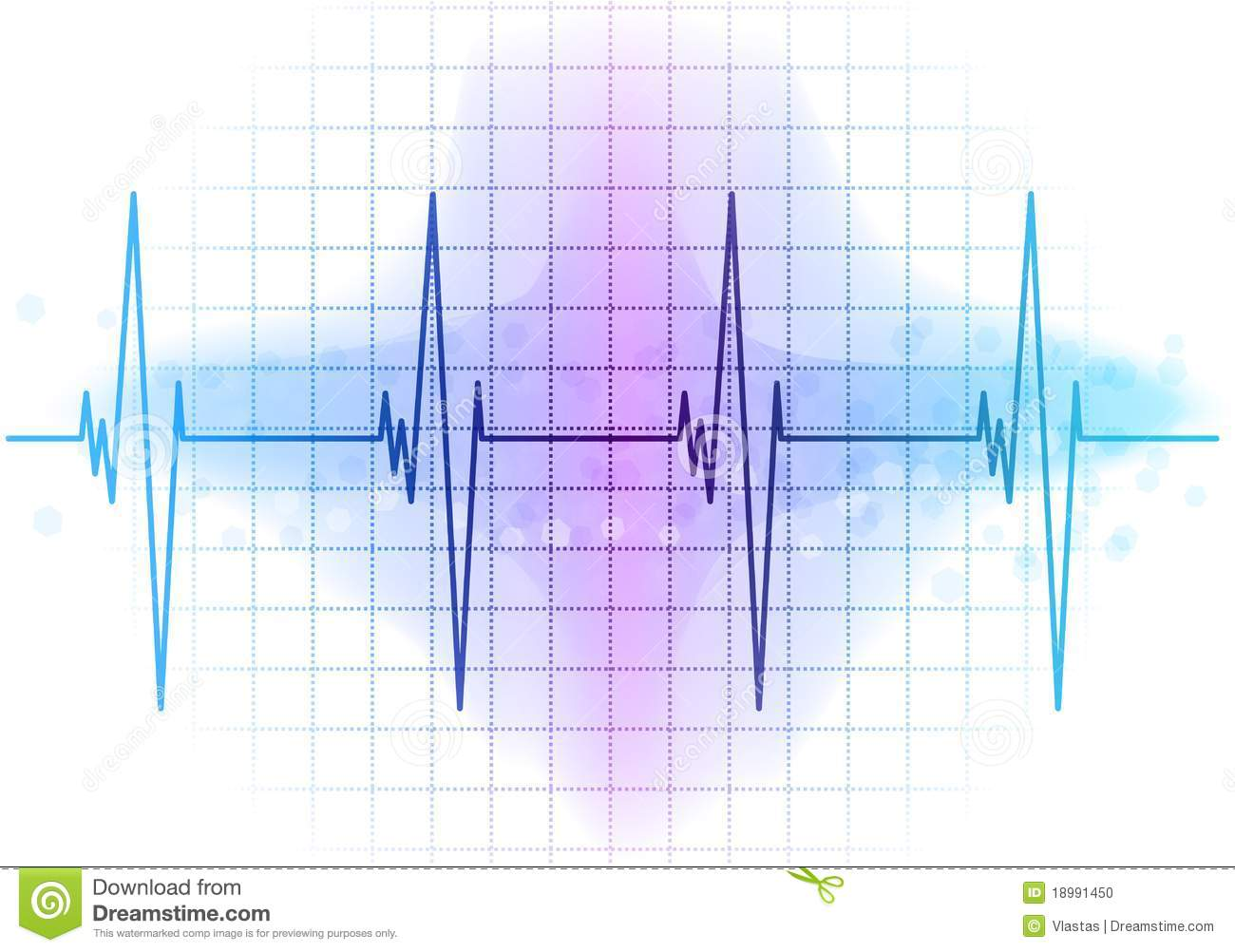 heart beat diagram wiring breaker box ekg stock photo image 18991450