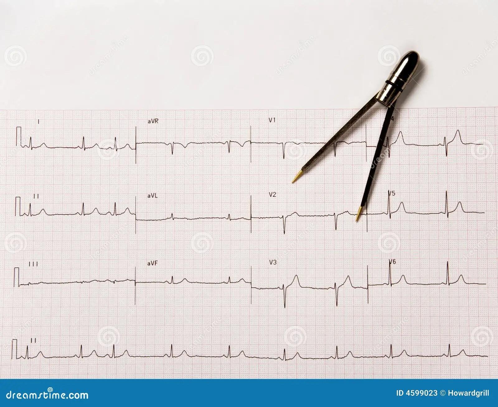 Electrocardiogram Or Ekg With Calipers Stock Image