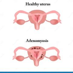 Gynecology Uterus Diagram 13 Pin Trailer Wiring Uk Vag Elsavadorla