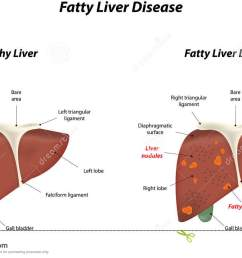 fatty liver disease stock vector illustration of falciform 45795887 diagram liver damage [ 1300 x 832 Pixel ]