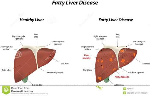 small resolution of fatty liver disease stock vector illustration of falciform 45795887 diagram liver damage