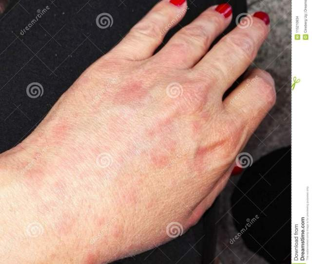 Female Hand Affected By Eczema
