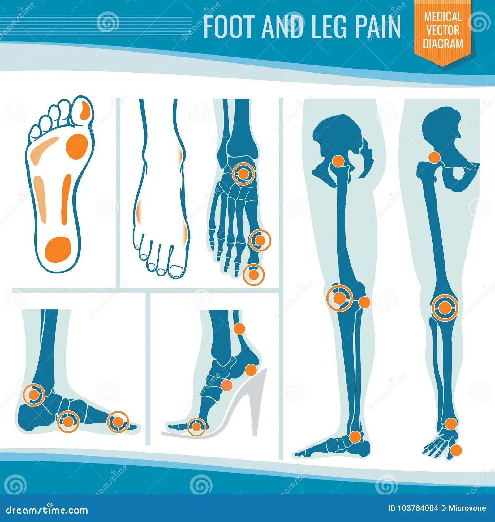 hight resolution of foot and leg pain arthritis and rheumatism orthopedic medical vector diagram
