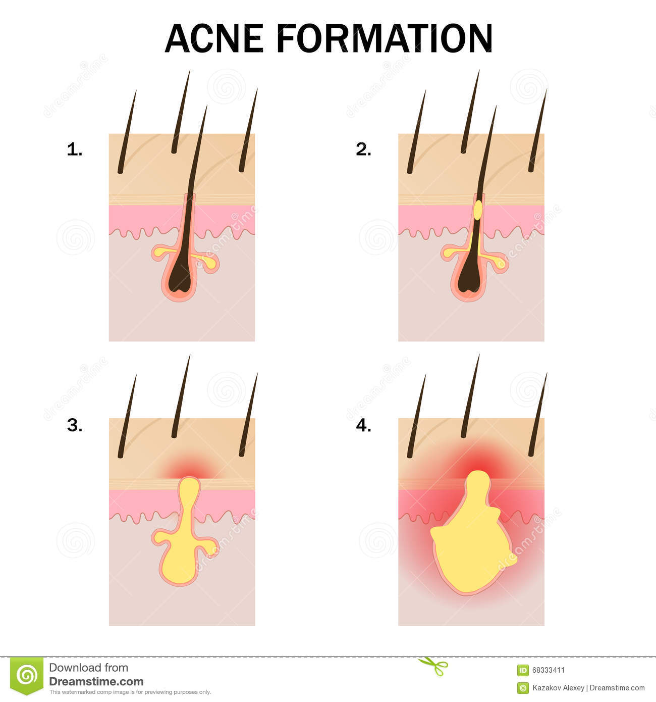 hormonal acne diagram 1998 ford mustang wiring skin gland get free image about