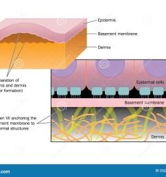 formation of a blister stock vector illustration of dermatology frozen warts blood blister blister wart diagram [ 1300 x 1029 Pixel ]
