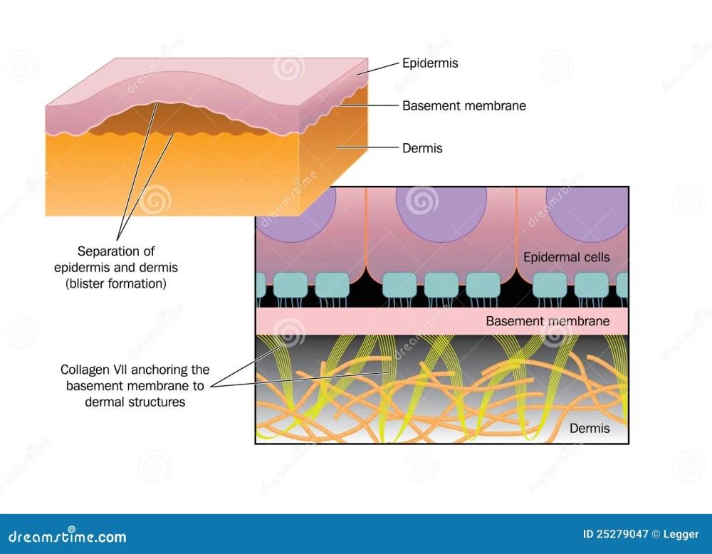 medium resolution of formation of a blister stock vector illustration of dermatology frozen warts blood blister blister wart diagram