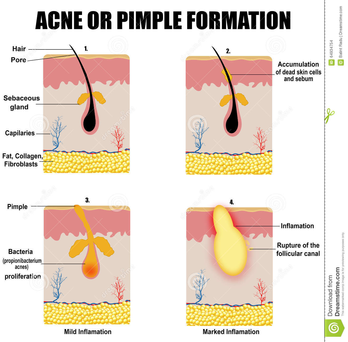 hight resolution of formation of skin acne or pimple