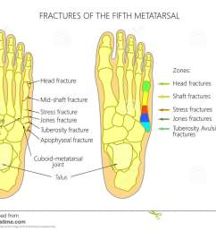 illustration diagram of the fifth metatarsal fractures types and zones classification in the foot  [ 1300 x 1019 Pixel ]