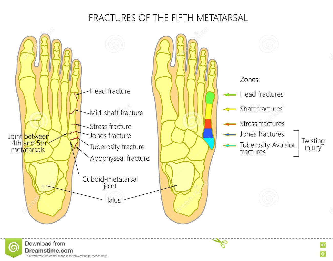 hight resolution of illustration diagram of the fifth metatarsal fractures types and zones classification in the foot