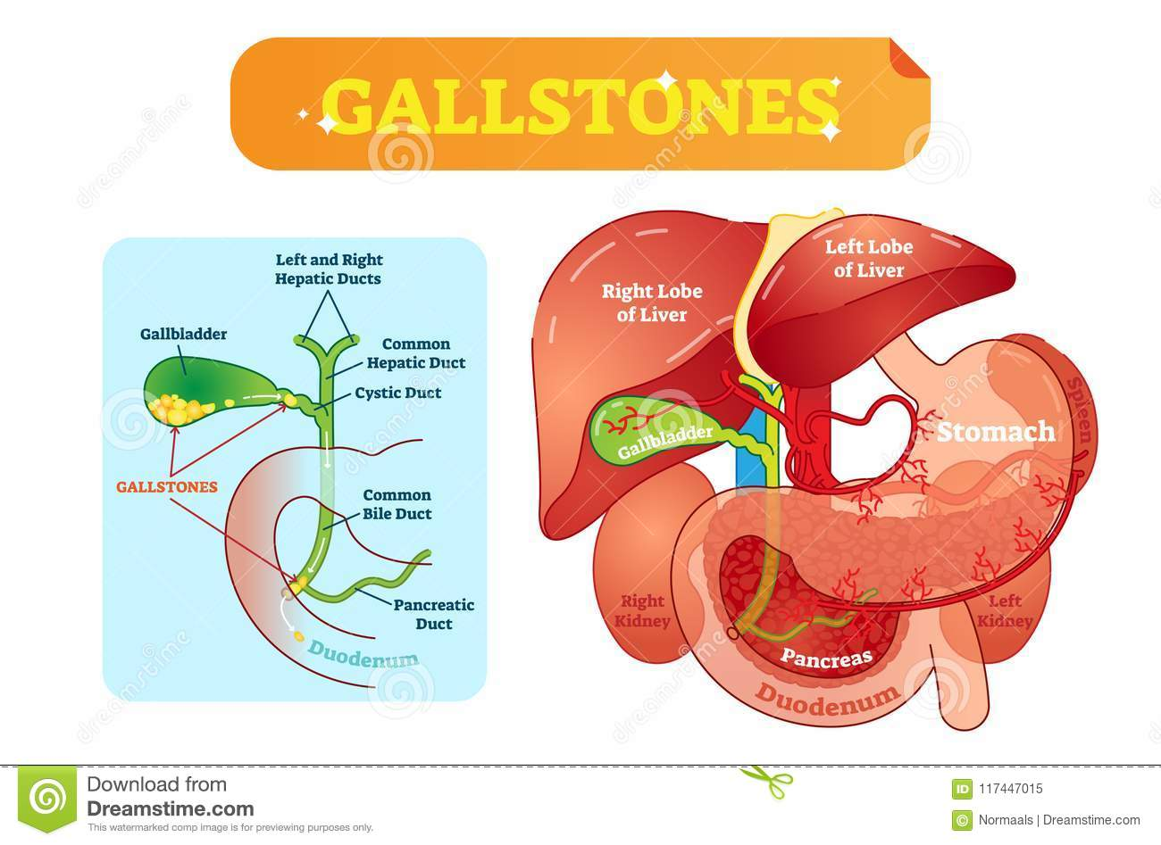 hight resolution of gallstones anatomical cross section vector illustration diagram with abdominal cavity and gallbladder bile ducts and
