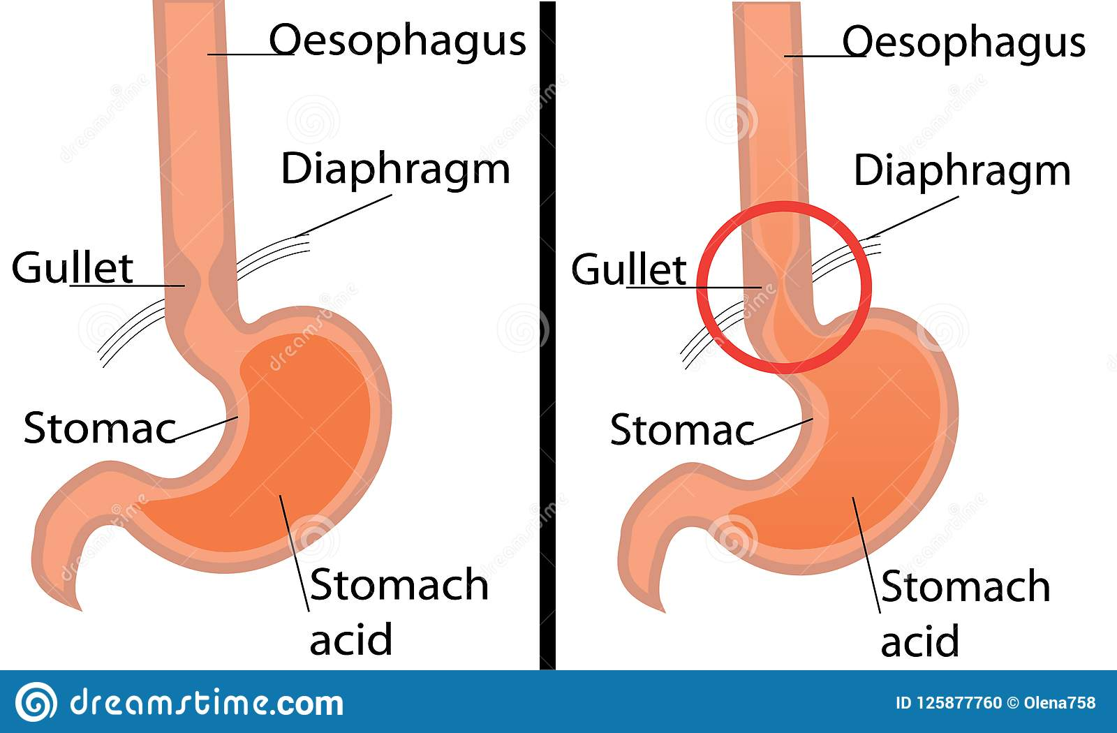 hight resolution of gastroesophageal reflux desease diagram healthy and gerd stomach vector illustration