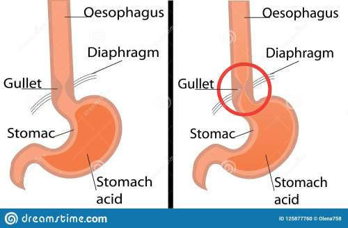 small resolution of gastroesophageal reflux desease diagram healthy and gerd stomach vector illustration