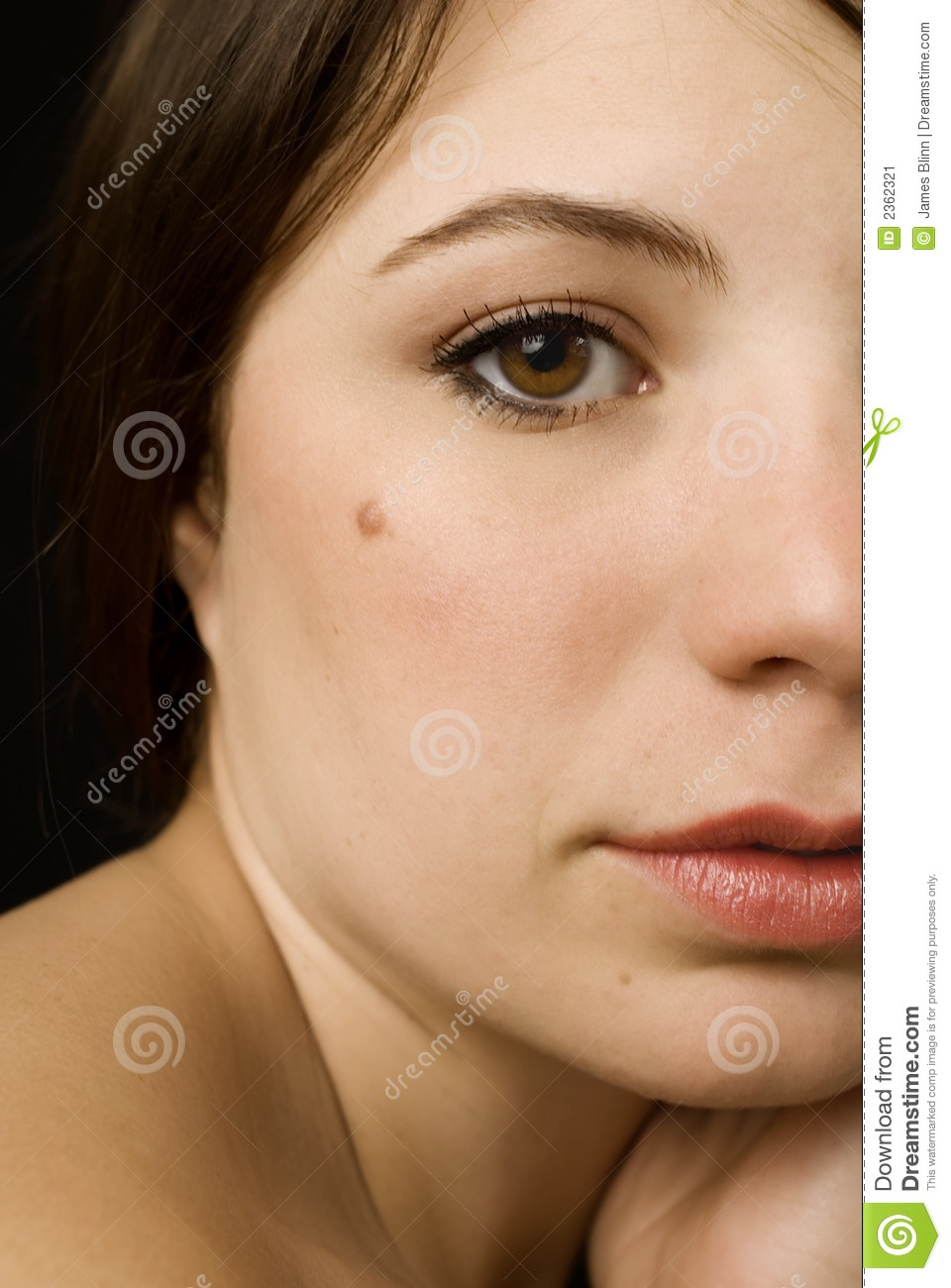 Girl With A Mole Stock Image Image 2362321