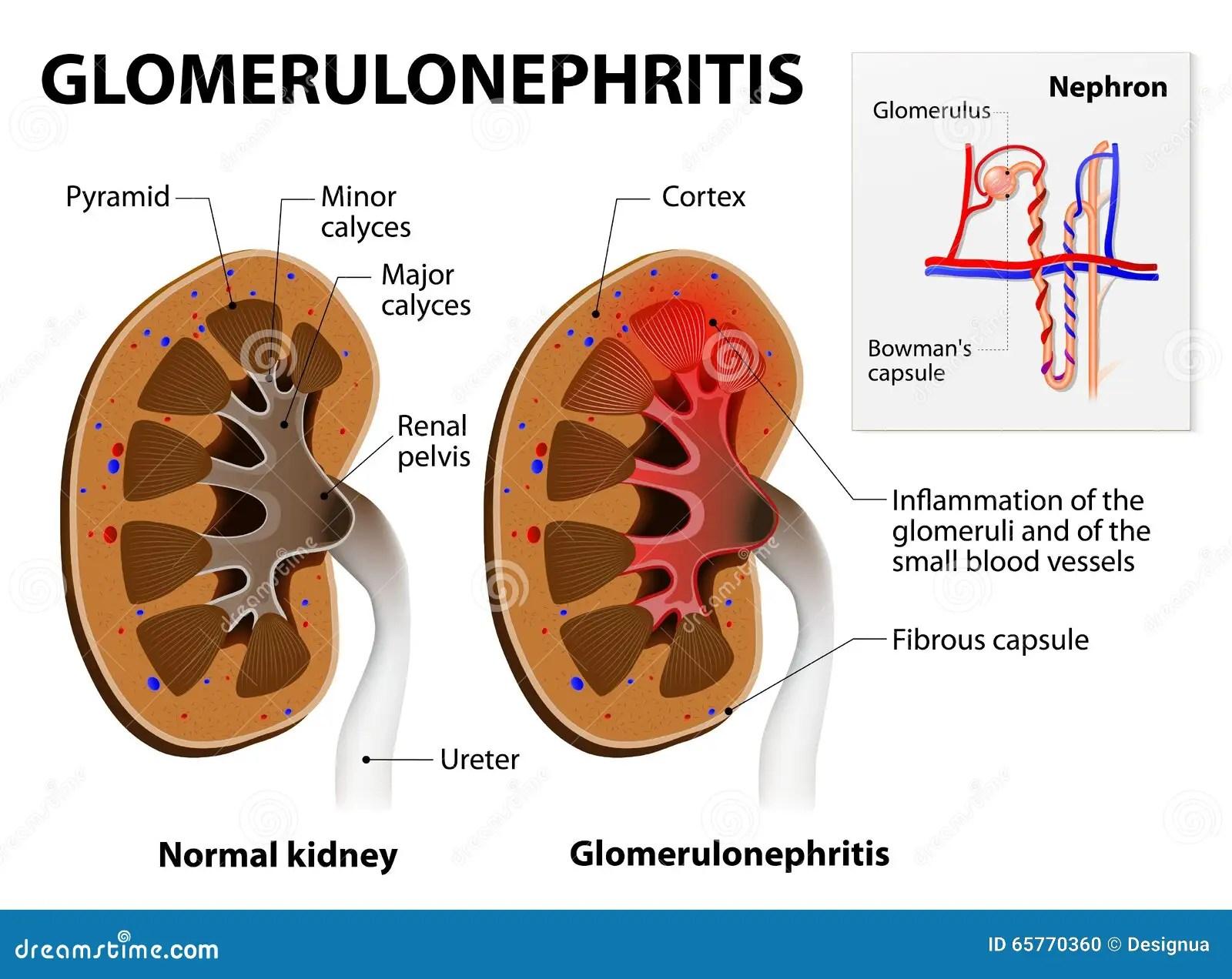 bowman s capsule diagram electrical lighting contactor wiring glomerulonephritis or glomerular nephritis kidney disease