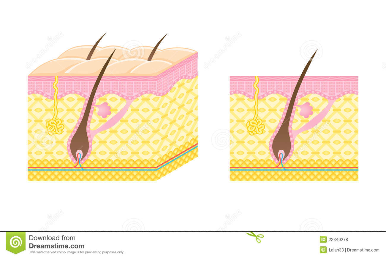 Hair Follicle Stock Vector Illustration Of Hairless