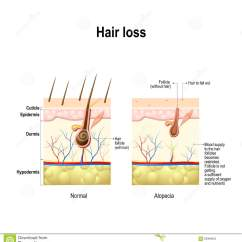 Hormonal Acne Diagram Hydraulic Pump Wiring Baldness Stock Illustrations  671