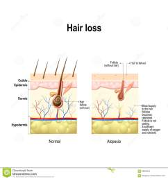 normal hair and alopecia areata in the human skin alopecia or baldness vector illustration [ 1300 x 1390 Pixel ]